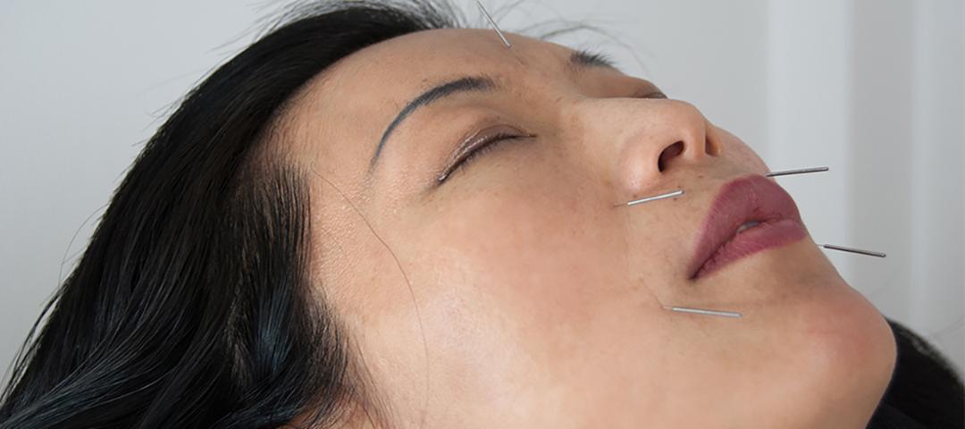 Entspannung bei Akupunktur